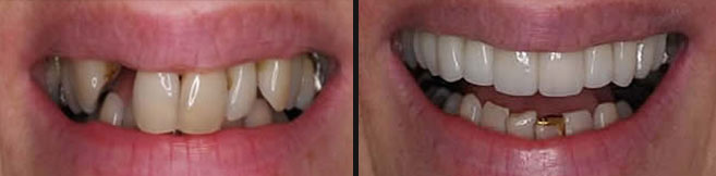 implants and crowns before and after