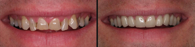 makeover with veneers and 3/4 crowns