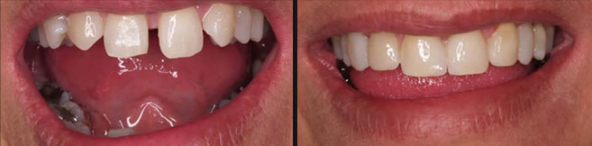 crowns, veneers and direct composite makeover